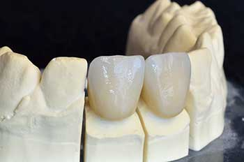Ocean Springs Ceramic Crowns